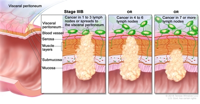 Stage IIIB colorectal cancer; drawing shows a cross-section of the colon/rectum and a three-panel inset. Each panel shows the layers of the colon/rectum wall: the mucosa, submucosa, muscle layers, and serosa. Also shown are a blood vessel and lymph nodes. The first panel shows cancer in all layers, in 3 nearby lymph nodes, and in the visceral peritoneum. The second panel shows cancer in all layers and in 5 nearby lymph nodes. The third panel shows cancer in the mucosa, submucosa, and muscle layers and in 7 nearby lymph nodes.